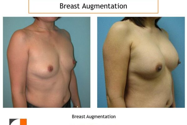 Breast augmentation in northern Virginia