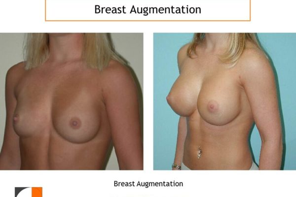Breat augmentation with implants in northern VA