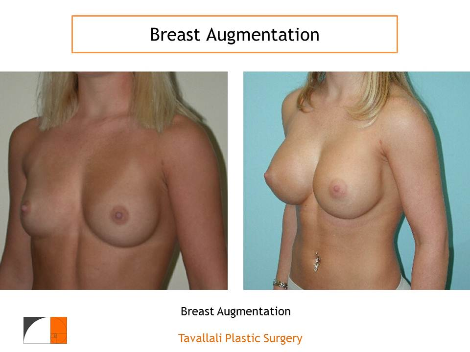 Should You Change Your Cosmetic Breast Implants Every Ten Years?