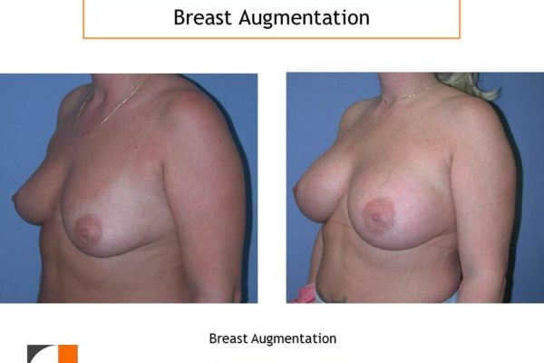 Breast enlargement with saline implants VA