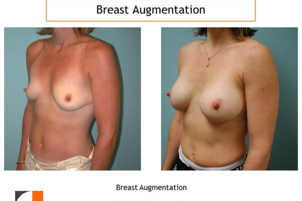 small breast enlargement result