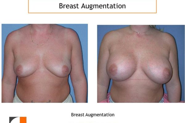 Breast augmentation with large implants northern VA