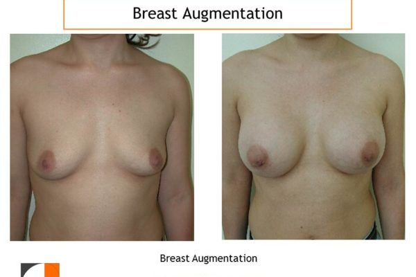 Breast_Augmentation(76)