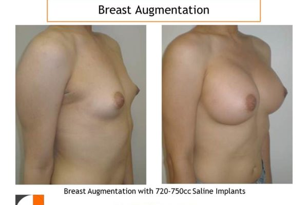 breast enlargement with 750 cc implants in woman with small breasts