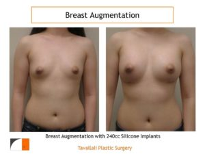 240 cc saline implants for breast augmentation surgery