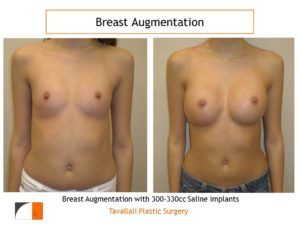 300-330 cc saline implants for breast surgery