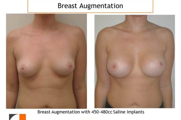 breast enlargement before and after saline implants 450-480 cc