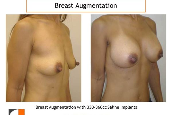 Breast augmentation surgery 330-360 cc before after