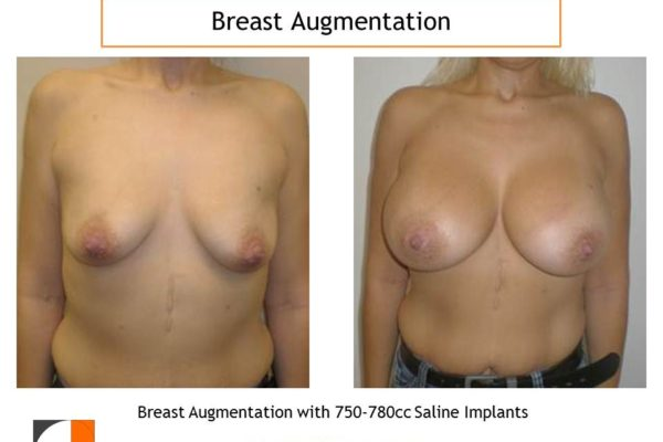 Breast augmentation surgery with 750-780 cc before after