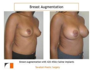 Breast augmentation saline implant with 420cc-450cc