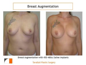 450cc 480cc Breast implants for augmentation before and after