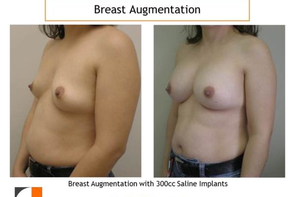 Result of 300 cc saline implants for breast augmentation