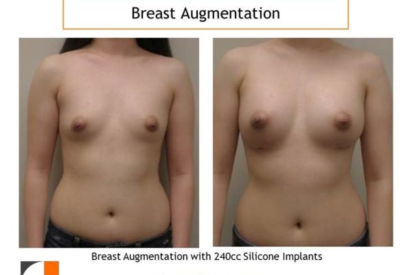 Breast augmentation surgery with small 240 cc implants before after