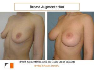 Saline implants 330-360cc for enlargement