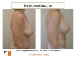 Saline implants 330 cc for enlargement before after