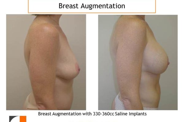 Saline implants 330 cc for enlargement before after
