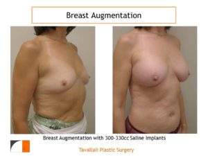 Before & after of 330 cc saline implant augmentation