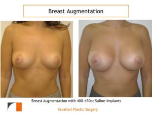 Breast augmentation before and after 400 cc-430 cc saline implants