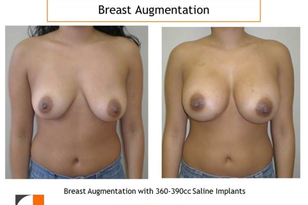 360-390 cc saline implants breast augmentation surgery