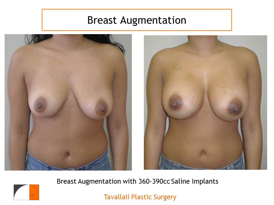 What to Do After Breast Augmentation Surgery, Part 2