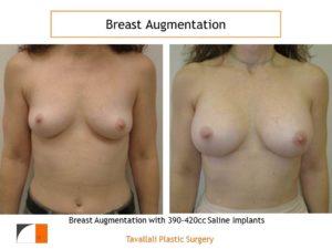 420 cc implants breast enlargement surgery
