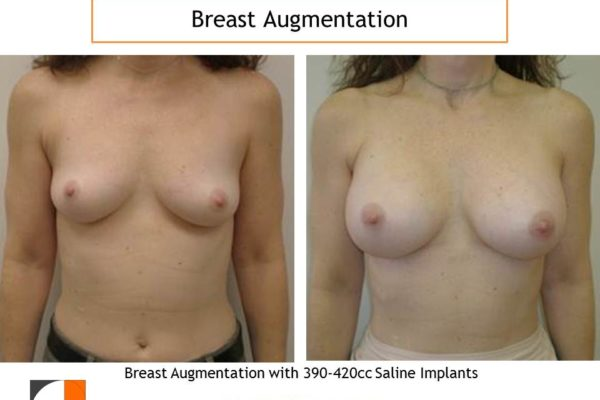 420 cc implants breast enlargement surgery