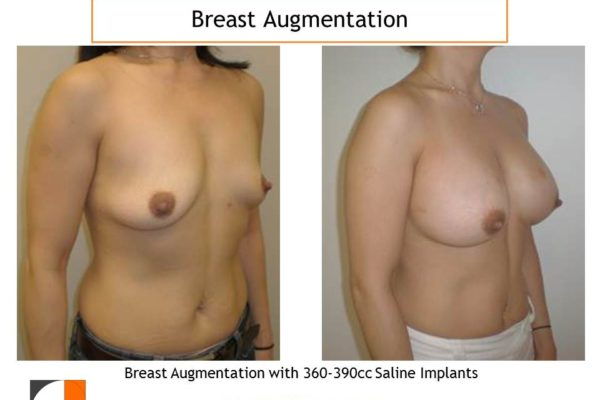 Breast augmentation with 360-390 cc saline implants