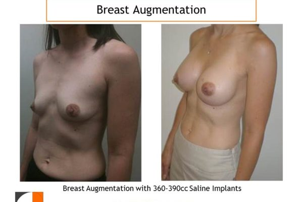 Breast enlargement with 360-390 cc saline implants