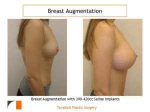 Breast augmentation surgery saline implants 390 cc
