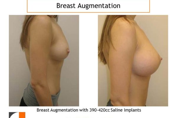 Breast augmentation surgery saline implants 390 cc