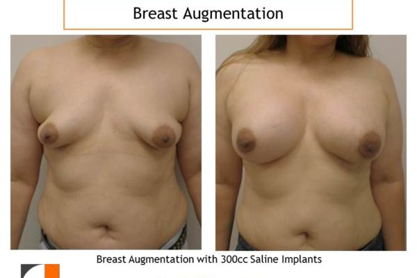 300 cc saline implants for breast augmentation