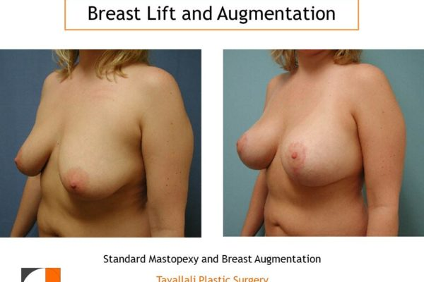 Standard mastopexy lift and breast augmentation