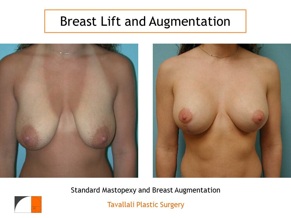 Breast Lift and-or Breast Augmentation