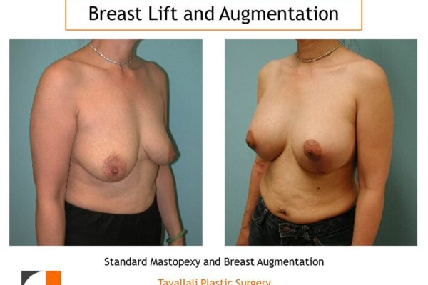 Breast augmentation at same time as breast lift results