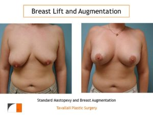 Breast lift and enlargement with saline implant in woman with different sized breasts