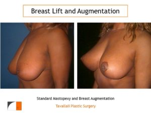 Breast lift and enlargement with implant before and after