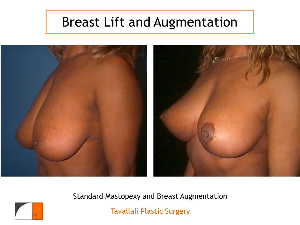 Cosmetic Breast Surgery Revision, Part 2
