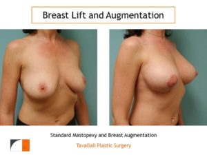 Breast lift and enlargement with implant before and after northern va
