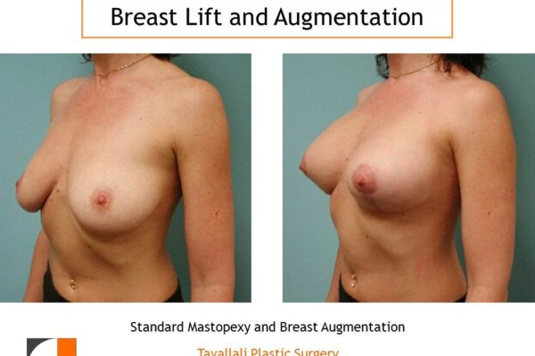 Breast lift and augmentation in northern Virginia