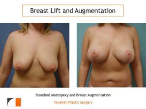 Standard mastopexy lift and breast augmentation