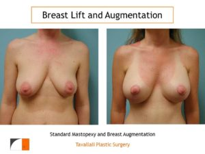 Breast lift surgery and breast augmentation surgery results