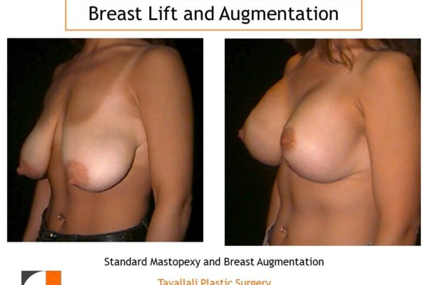 Breast lift mastopexy with enlargement of breast silicone implants