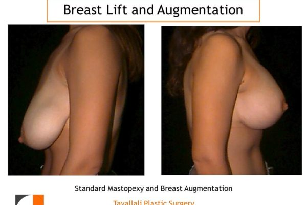 Breast lift and augmentation result Dr. Tavallali