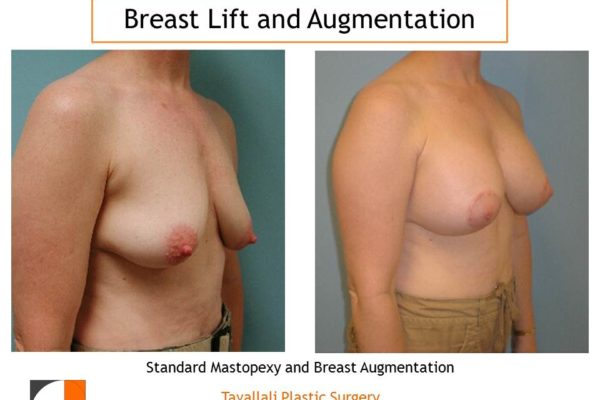 Breast augmentation and lift mastopexy before after result