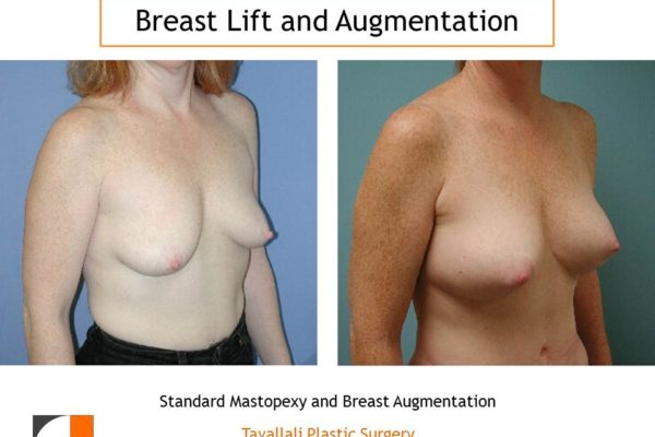 Breast lift with small breast augmentation with implants