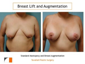 Breast lift augmentation surgery result