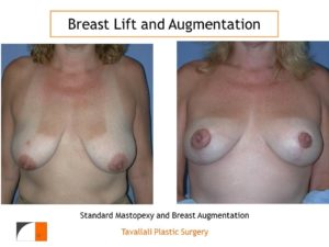 Breast lift and enlargement with saline implant