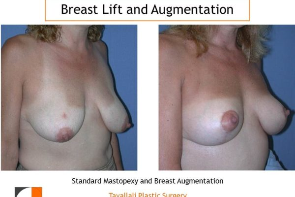 Before after breast lift and augmentation with saline implant