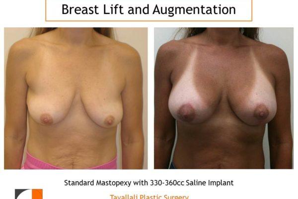 Standard breast lift mastopexy with 330 cc saline implant enlargement