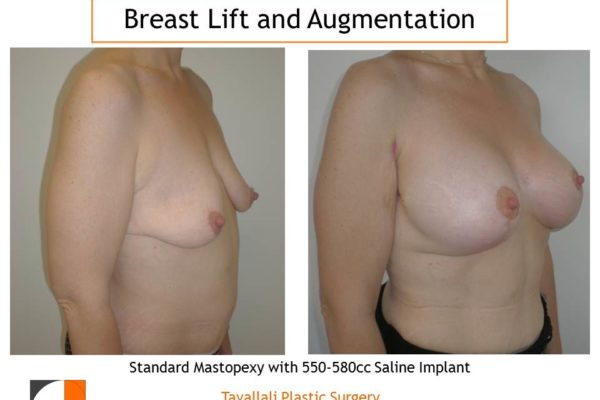 Breast lift and breast augmentation with 550-580 cc saline implants